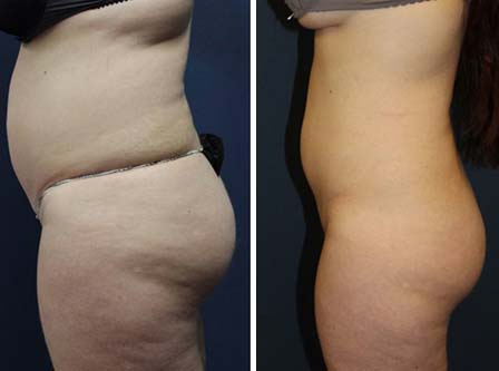 cryo-before-after3